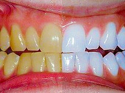 Easy Ways to Whiter Teeth